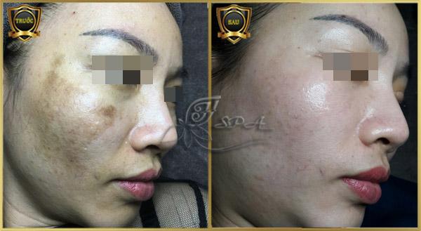 Hình ảnh khách điều trị nám sau sinh hiệu quả ở H&T Spa tại TpHCM.