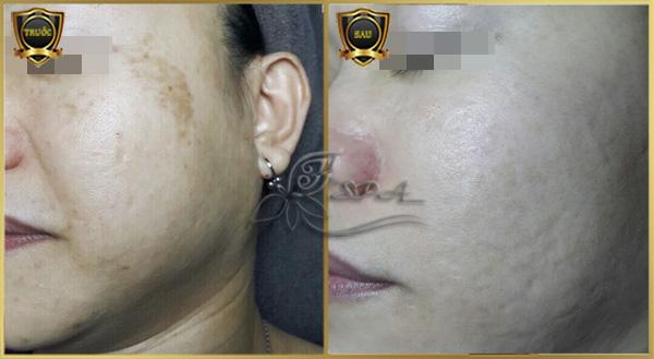 Hình ảnh khách điều trị nám hiệu quả tại Spa H&T ở TpHCM.