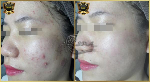 Hình ảnh trước và sau khi điều trị mụn hiệu quả tại H&T Spa ở TPHCM.